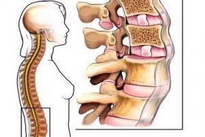 schiacciamento vertebre lombari