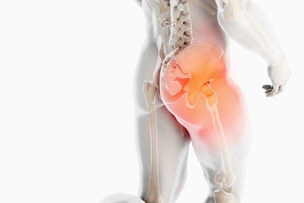 Riconoscere e trattare i dolori all'anca