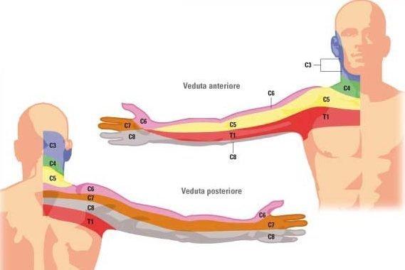 come curare la cervicobrachialgia