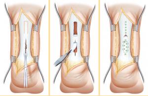 chirurgia tendine d'achille