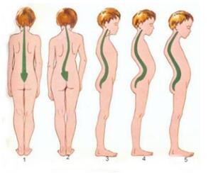 alterazioni posturali del bambino