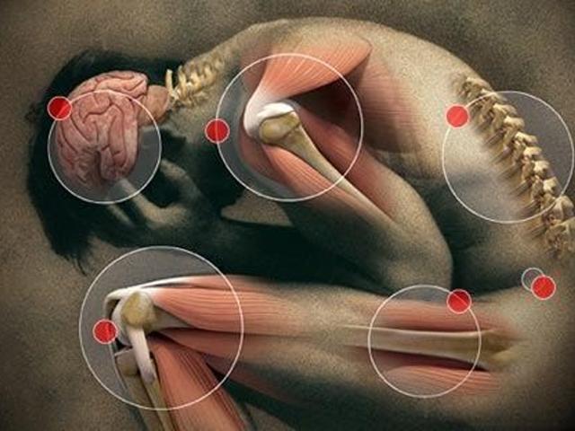 Fibromialgia segni e sintomi