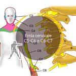 Ernia cervicale C5-C6 o C6-C7
