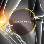 Lesione menisco