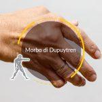 Morbo di Dupuytren