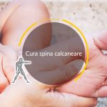 Cura spina calcaneare