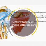 L'infiammazione del tendine sottoscapolare
