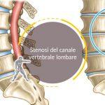 Stenosi del canale vertebrale lombare