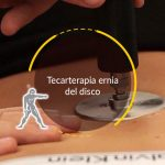 Tecarterapia ernia del disco
