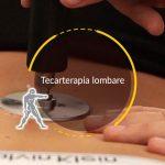 Tecarterapia lombare