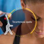 Tecarterapia spalla