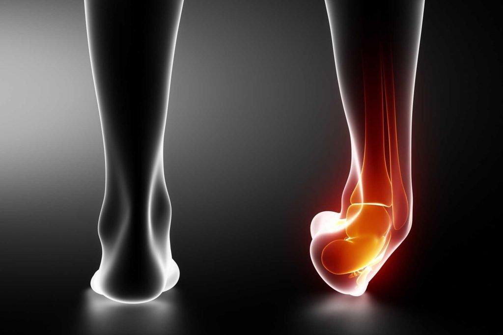 distorsione-alla-caviglia